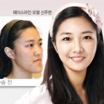Startling Images of Plastic Surgery in Korea